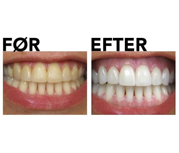 Tandblekningssæt før og efter gennemgangsbillede