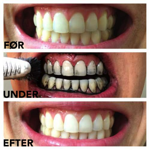 Bleg dine tænder med Aktivt kul før & efter
