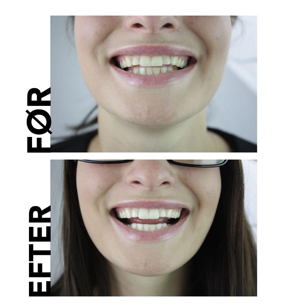 naturlig tandblegning tandpasta før og efter